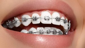 Ukrainian Braces in Illinois and Colorado