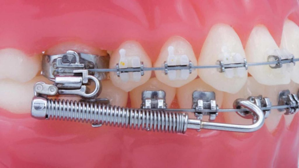 Forsus - Orthodontic Appliance